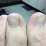 1 Pre surgery1 150x150 Ingrown Toenail Surgery & Post Op Care