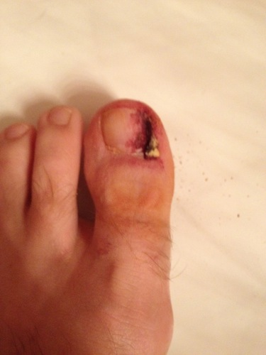 11 Day1 RemoveBandageLeftToe Ingrown Toenail Surgery & Post Op Care