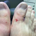 2 AfterTheShots1 150x150 Ingrown Toenail Surgery & Post Op Care