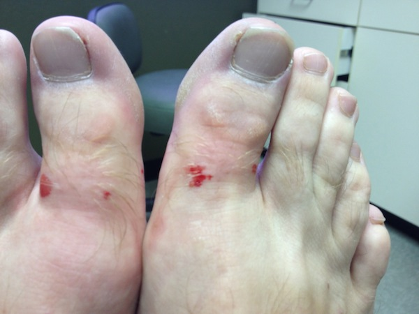 2 AfterTheShots1 Ingrown Toenail Surgery & Post Op Care