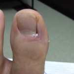 21 Day10 LeftToeDressingApplied 150x150 Ingrown Toenail Surgery & Post Op Care