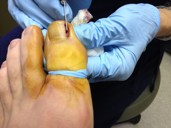 6 MoreNailCleaving1 Ingrown Toenail Surgery & Post Op Care