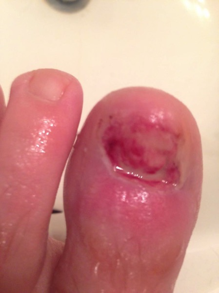 Ingrown Toenail Removal Surgery Infection